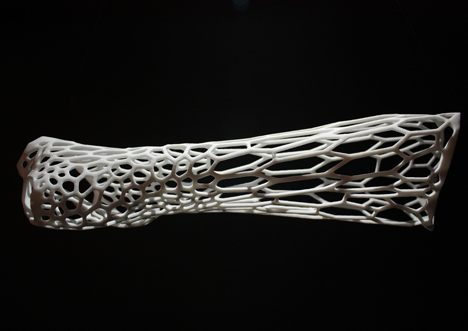 dezeen_Cortex-3D-printed-cast-for-broken-bones-by-Jake-Evill-3-2